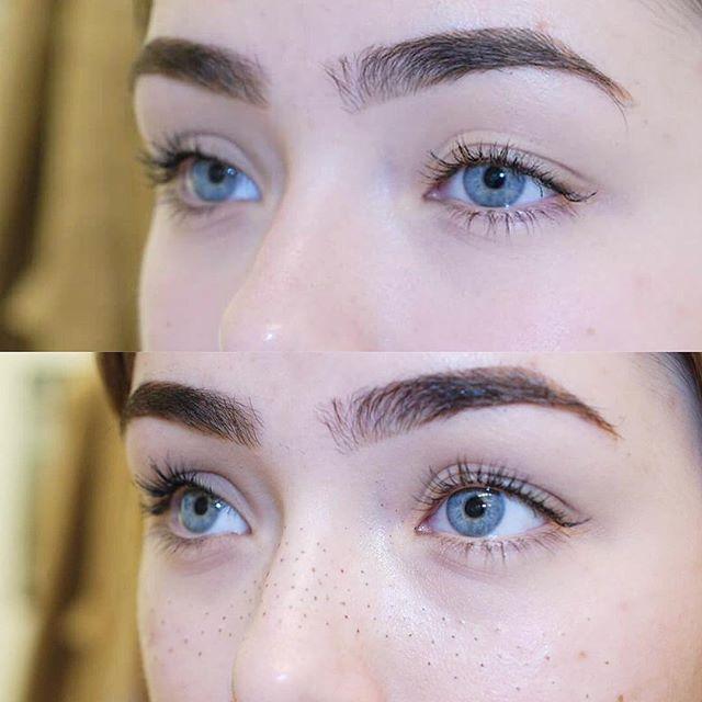 freckle-sarah-1