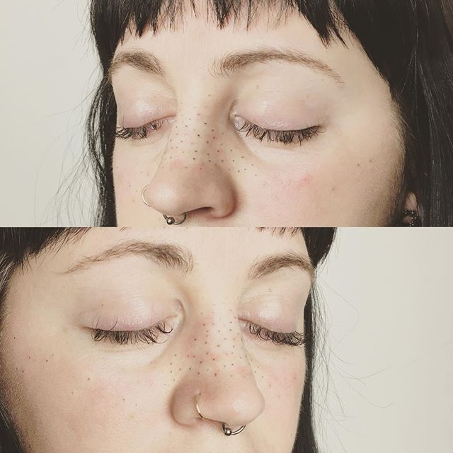 freckle-sarah