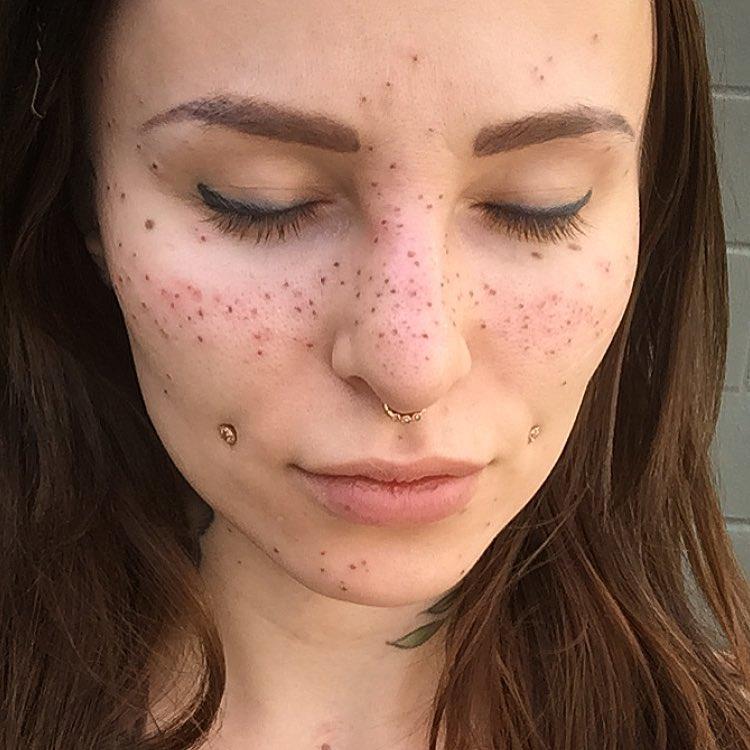 freckle-sydney-self